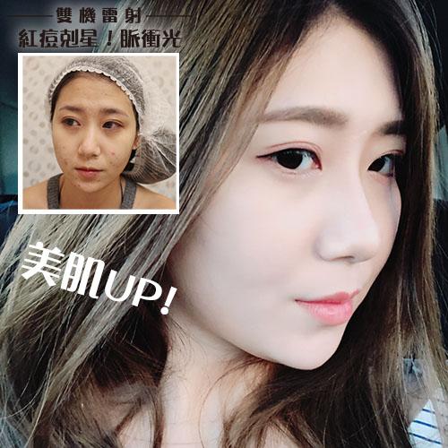 http://www.skin1000.com.tw/userfiles/S__5373969.jpg